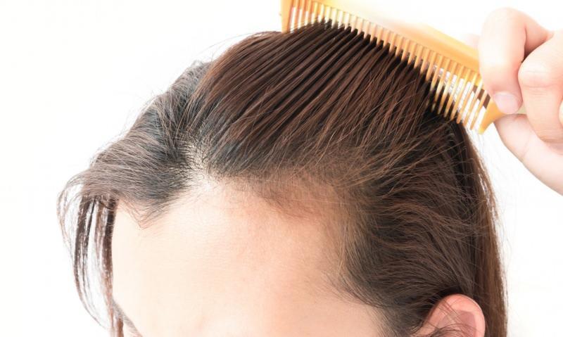 doğum sonrası saç dökülmesi çözümleri! Saç dökülmesine ne iyi gelir?