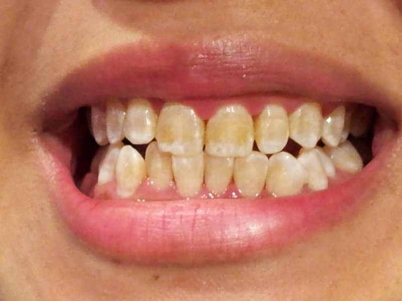 diş dibi kararmaya başlayan bir insanın diş görüntüsü