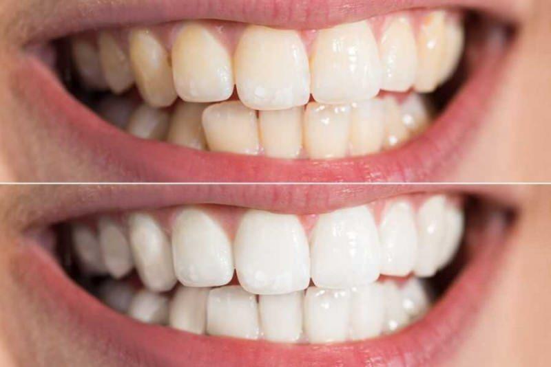 diş dibi kararma genetiksel yapıyla oluşabilir