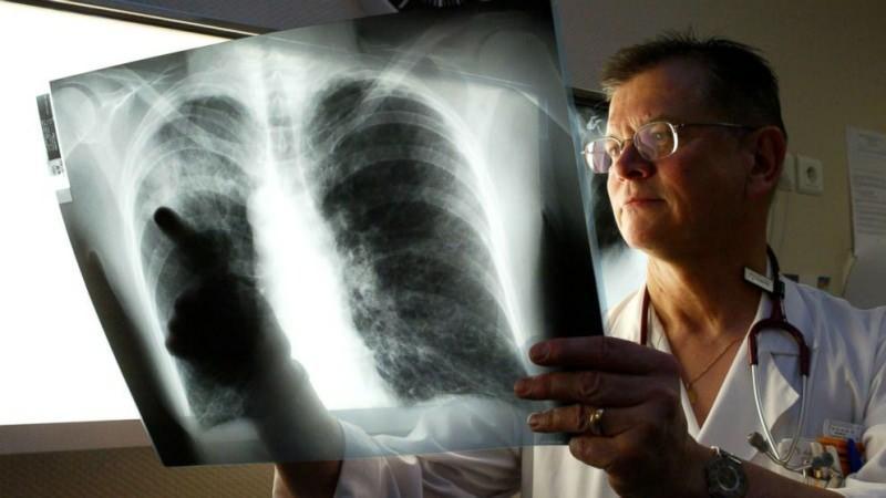 lejyoner virüsü akciğerlere yerleşir