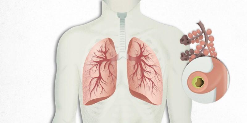 akciğerlere yerleşen virüs zatürre ile karıştırılır