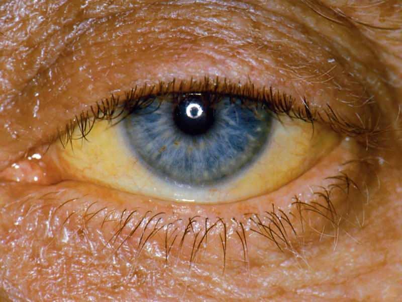 bilirubin seviyesindeki yükseklik göz ve ciltte sarı renge neden olur