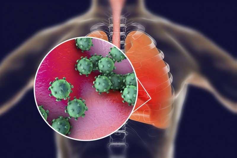 zatürre virüs etkisi ile kovid neredeyse benzerlik gösterdiğinden uzmanlar dikkat etmesi gerekir