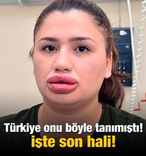 Türkiye onu böyle tanımıştı! İşte son hali