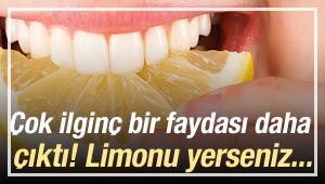 Limon diyeti nedir? Günlük limon diyeti nasıl yapılır?