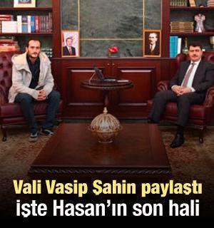 Ankara Valisi Şahin paylaştı! İşte sosyal medyanın konuştuğu Hasan'ın son hali...